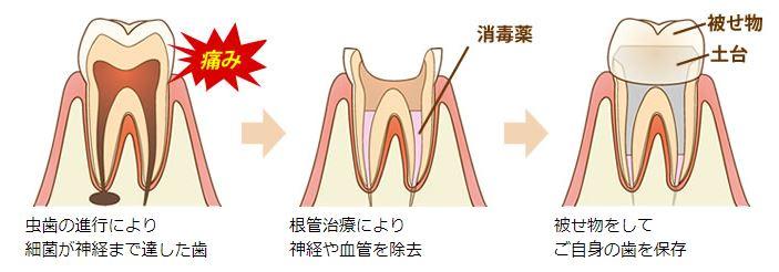 根管治療の概要