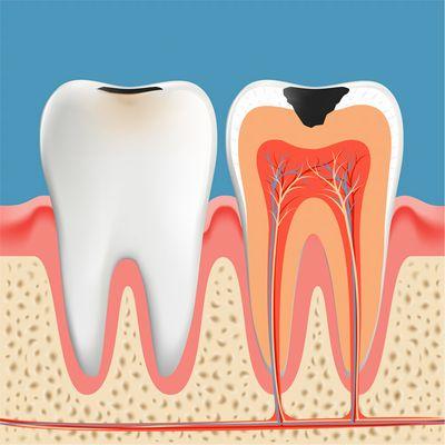 歯の内部構造と歯髄
